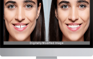 dental treatment simulation Software